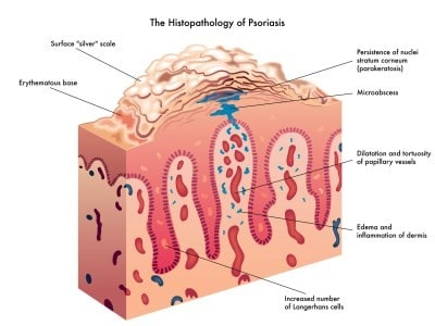 Psoriasis is a very diverse skin disease that appears in a variety of forms 3