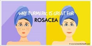 Why Turmeric is great for rosacea